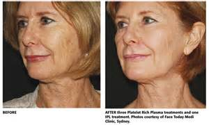 Selphyl-before-and-after (3)