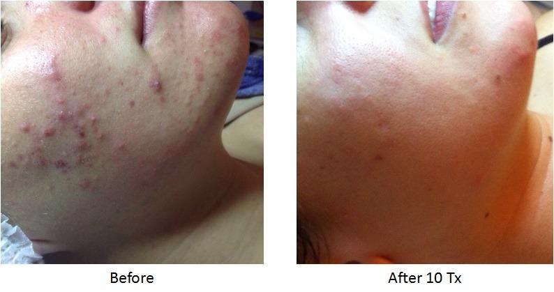 viora-acne
