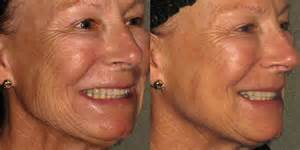 Selphyl-before-and-after (4)
